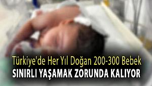 Türkiye'de her yıl doğan 200-300 bebek sınırlı yaşamak zorunda kalıyor